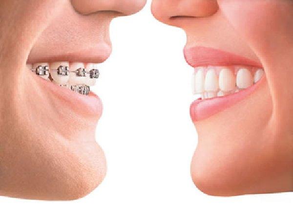 1-visita-ortodoncia-invisible-blanqueo-gratis-desde-2500_2